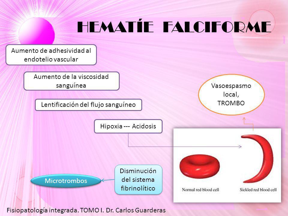 HEMATÍE FALCIFORME Fisiopatología integrada.TOMO I.