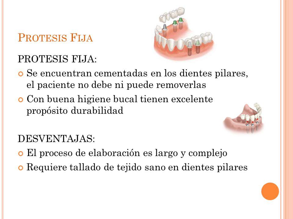 P ROTESIS F IJA PROTESIS FIJA: Se encuentran cementadas en los dientes pilares, el paciente no debe ni puede removerlas Con buena higiene bucal tienen excelente propósito durabilidad DESVENTAJAS: El proceso de elaboración es largo y complejo Requiere tallado de tejido sano en dientes pilares