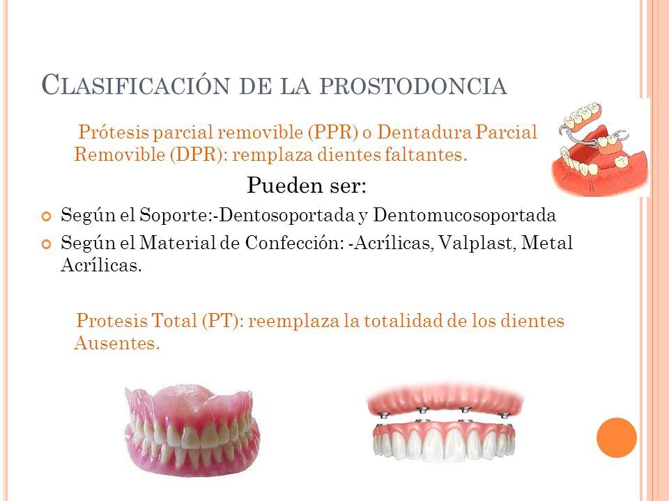 C LASIFICACIÓN DE LA PROSTODONCIA Prótesis parcial removible (PPR) o Dentadura Parcial Removible (DPR): remplaza dientes faltantes. Pueden ser: Según