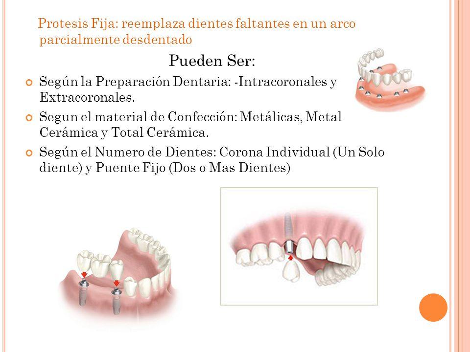 Protesis Fija: reemplaza dientes faltantes en un arco parcialmente desdentado Pueden Ser: Según la Preparación Dentaria: -Intracoronales y Extracoronales.