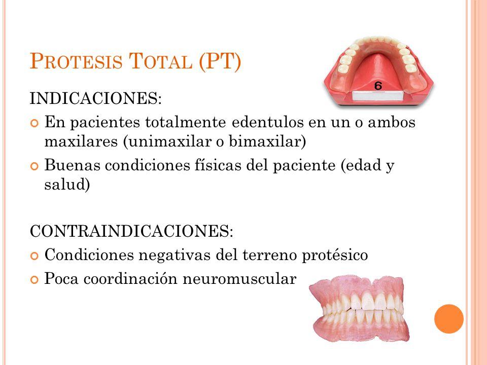 P ROTESIS T OTAL (PT) INDICACIONES: En pacientes totalmente edentulos en un o ambos maxilares (unimaxilar o bimaxilar) Buenas condiciones físicas del paciente (edad y salud) CONTRAINDICACIONES: Condiciones negativas del terreno protésico Poca coordinación neuromuscular