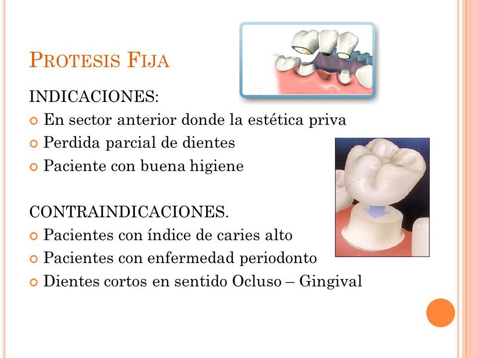 P ROTESIS F IJA INDICACIONES: En sector anterior donde la estética priva Perdida parcial de dientes Paciente con buena higiene CONTRAINDICACIONES. Pac