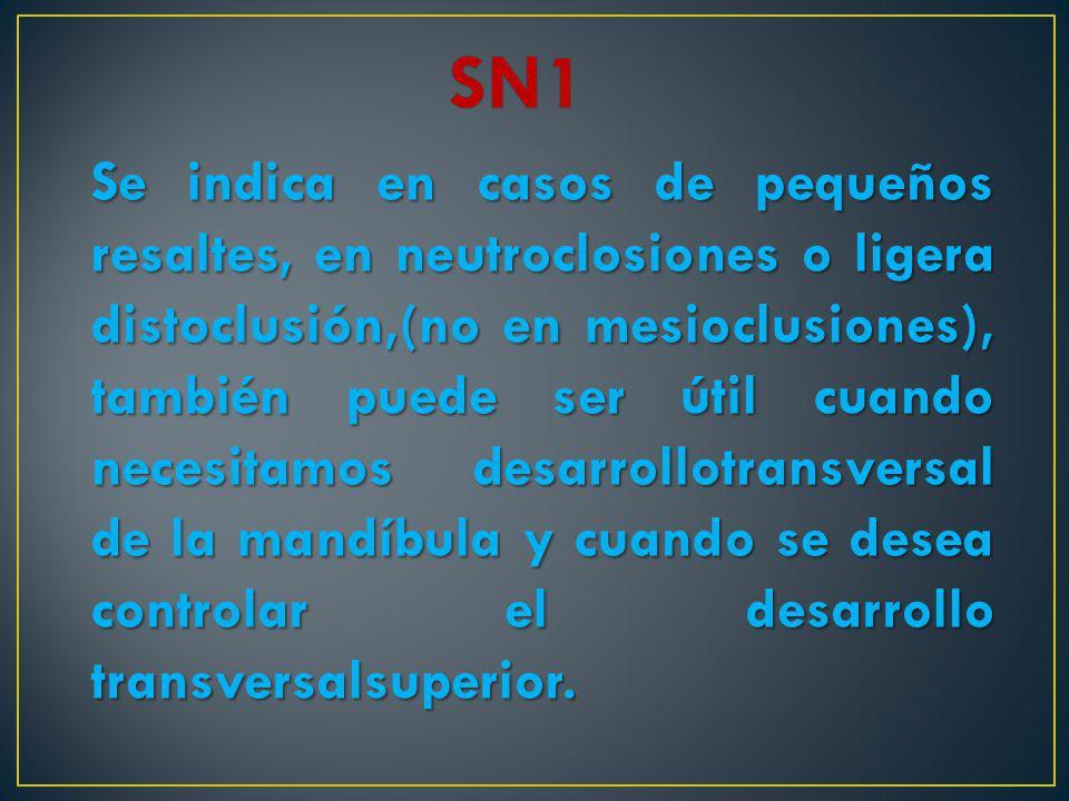 Se indica en casos de pequeños resaltes, en neutroclosiones o ligera distoclusión,(no en mesioclusiones), también puede ser útil cuando necesitamos de