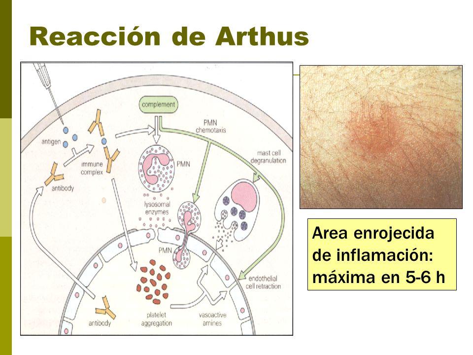 Reacción de Arthus Area enrojecida de inflamación: máxima en 5-6 h