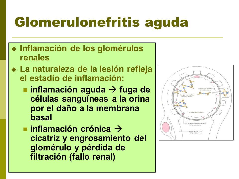 Glomerulonefritis aguda Inflamación de los glomérulos renales La naturaleza de la lesión refleja el estadío de inflamación: inflamación aguda fuga de