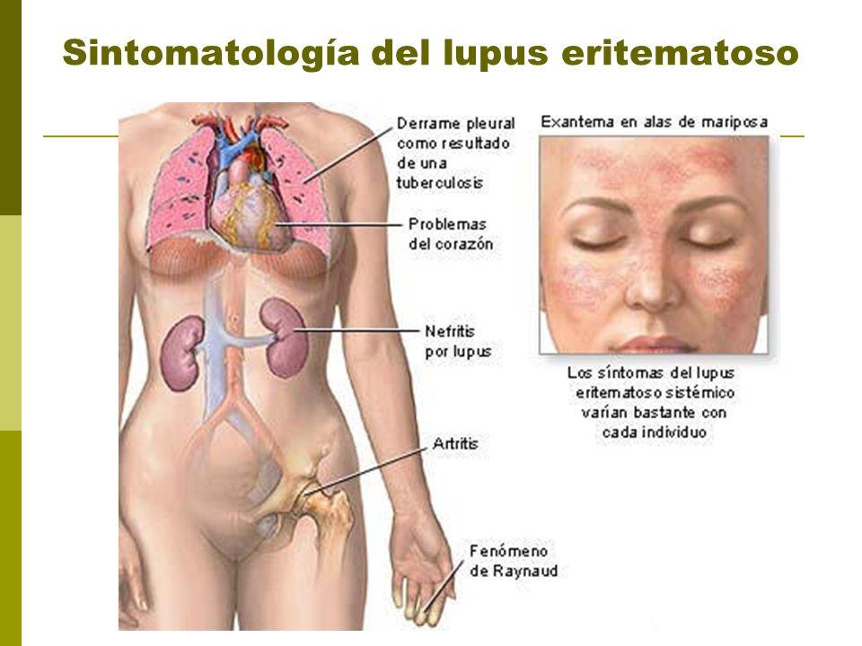Sintomatología del lupus eritematoso