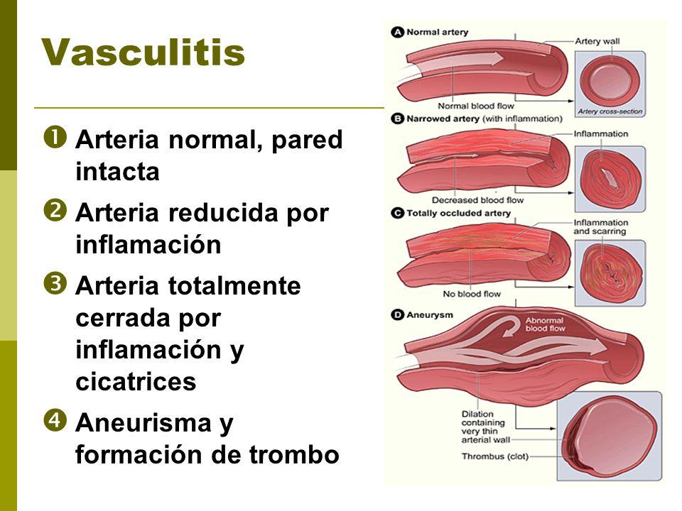 Vasculitis Arteria normal, pared intacta Arteria reducida por inflamación Arteria totalmente cerrada por inflamación y cicatrices Aneurisma y formació