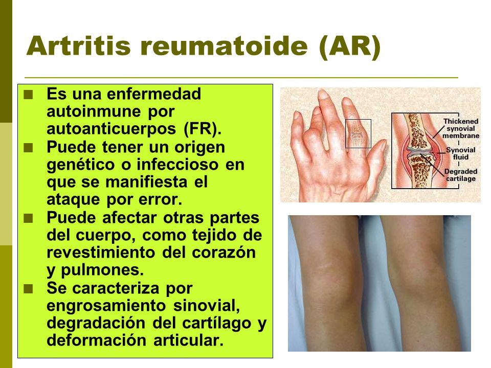 Artritis reumatoide (AR) Es una enfermedad autoinmune por autoanticuerpos (FR). Puede tener un origen genético o infeccioso en que se manifiesta el at