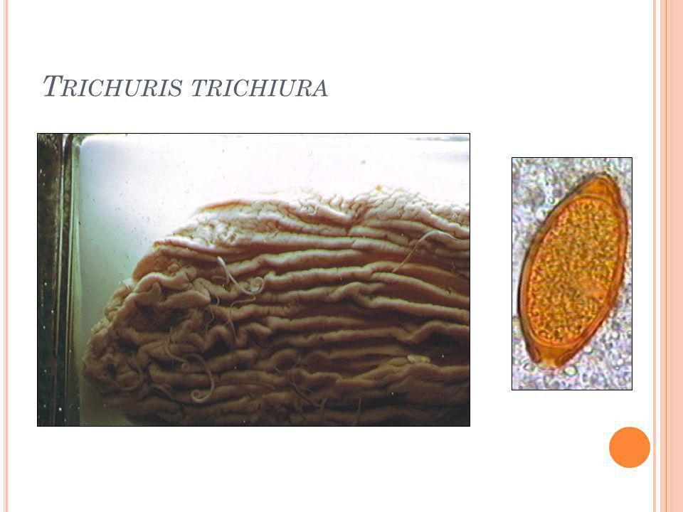 T RICHURIS TRICHIURA