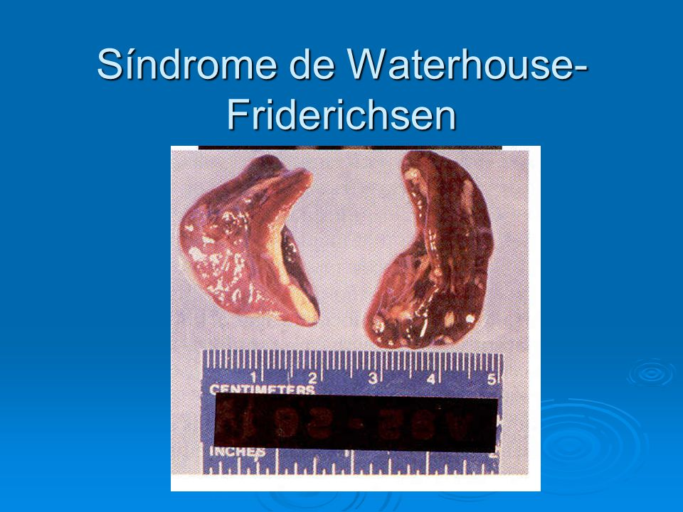 Síndrome de Waterhouse- Friderichsen
