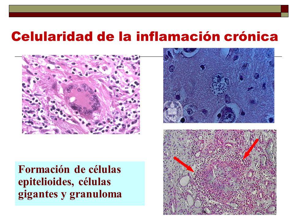 Celularidad de la inflamación crónica Formación de células epitelioides, células gigantes y granuloma