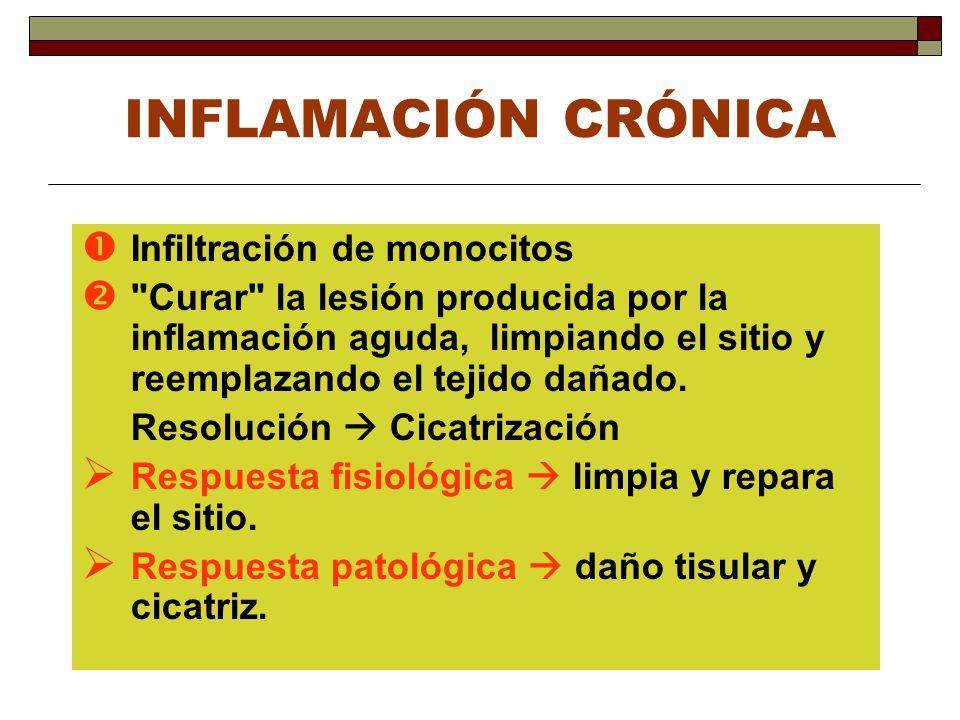 INFLAMACIÓN CRÓNICA Infiltración de monocitos