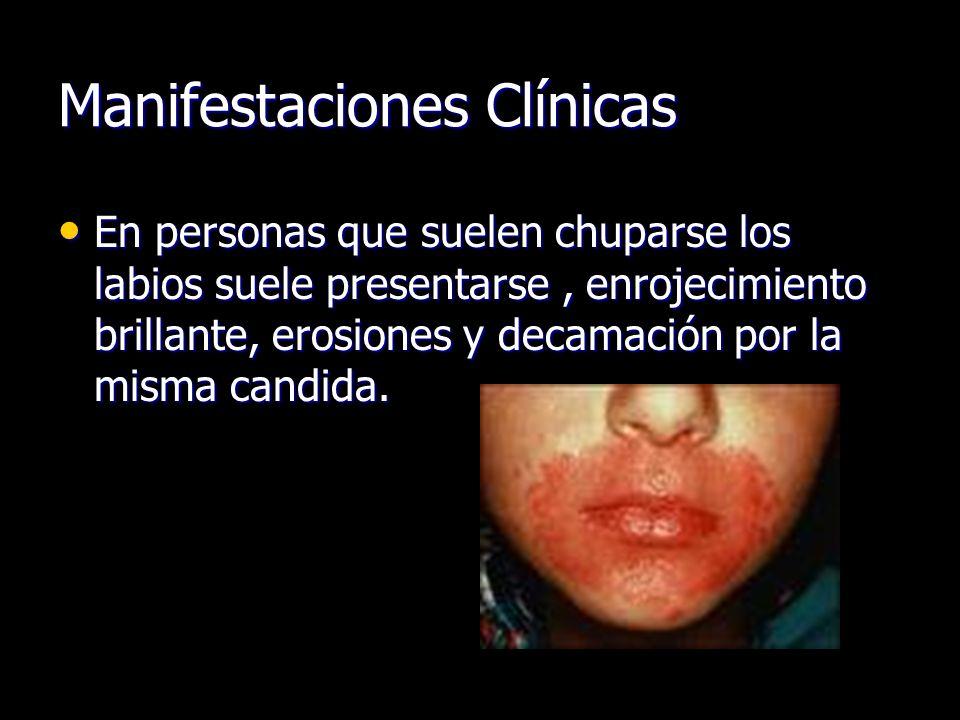 Manifestaciones Clínicas En personas que suelen chuparse los labios suele presentarse, enrojecimiento brillante, erosiones y decamación por la misma candida.