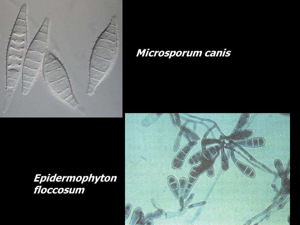 Microsporum canis Epidermophyton floccosum