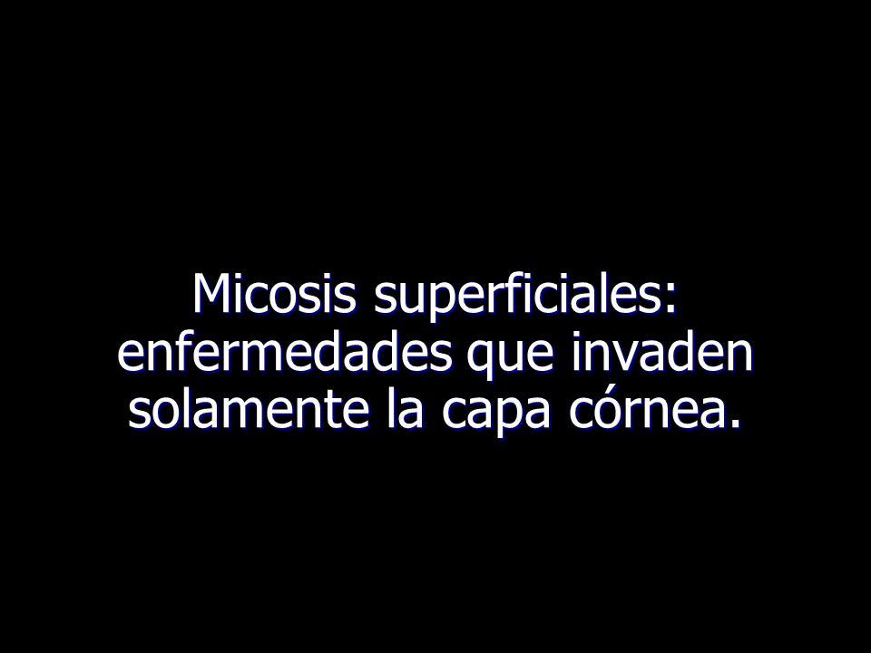 Micosis superficiales: enfermedades que invaden solamente la capa córnea.