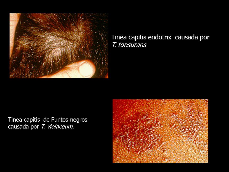 Tinea capitis de Puntos negros causada por T. violaceum. Tinea capitis endotrix causada por T. tonsurans