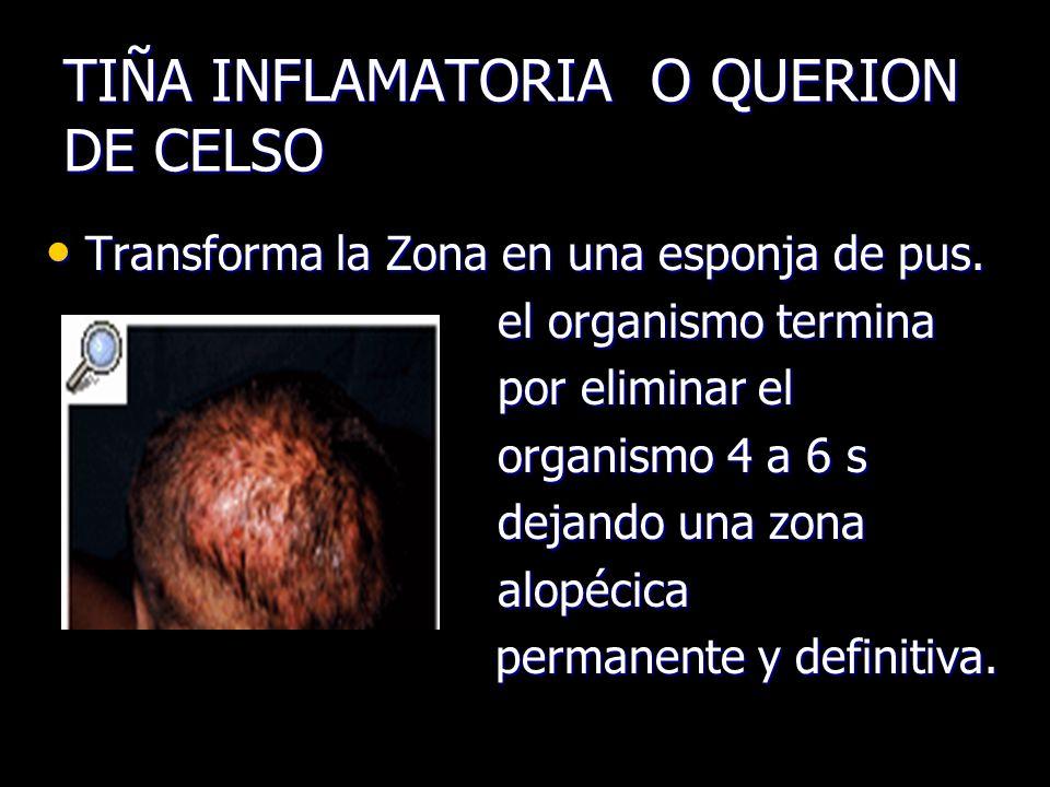 TIÑA INFLAMATORIA O QUERION DE CELSO Transforma la Zona en una esponja de pus. Transforma la Zona en una esponja de pus. el organismo termina el organ