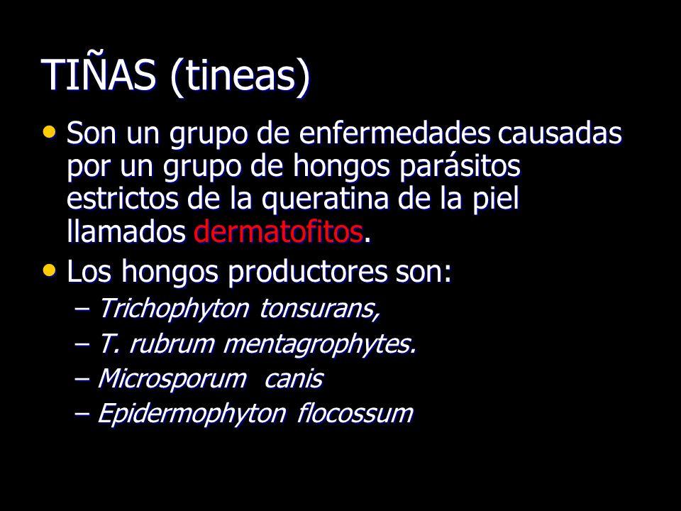 TIÑAS (tineas) Son un grupo de enfermedades causadas por un grupo de hongos parásitos estrictos de la queratina de la piel llamados dermatofitos. Son