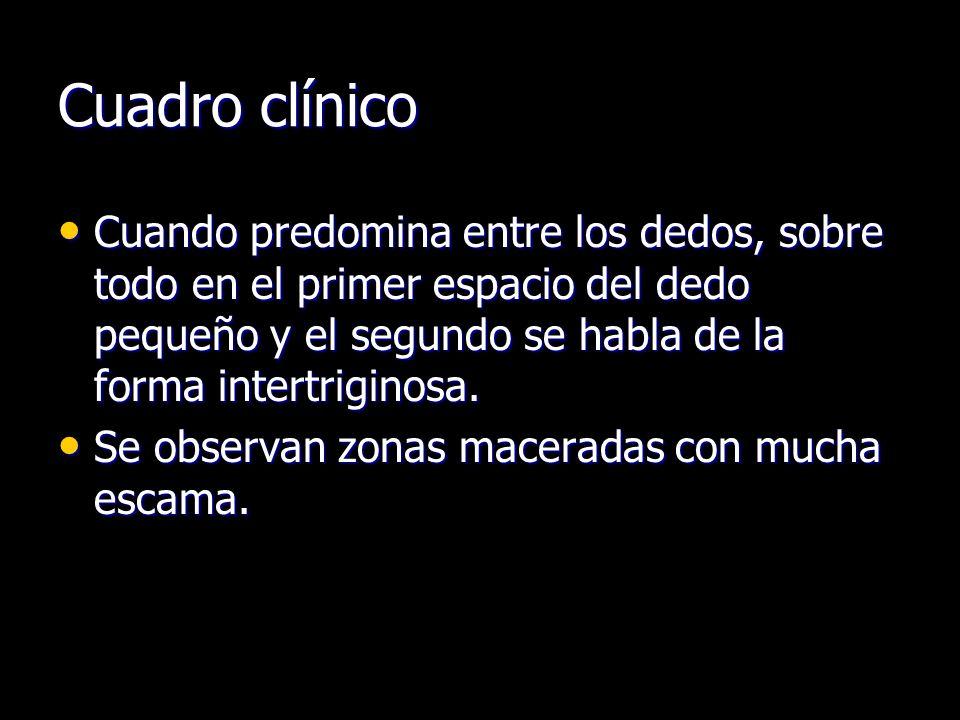 Cuadro clínico Cuando predomina entre los dedos, sobre todo en el primer espacio del dedo pequeño y el segundo se habla de la forma intertriginosa. Cu