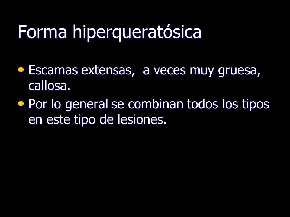 Forma hiperqueratósica Escamas extensas, a veces muy gruesa, callosa. Escamas extensas, a veces muy gruesa, callosa. Por lo general se combinan todos