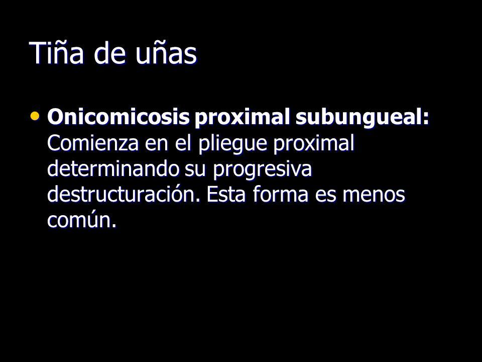 Tiña de uñas Onicomicosis proximal subungueal: Comienza en el pliegue proximal determinando su progresiva destructuración. Esta forma es menos común.
