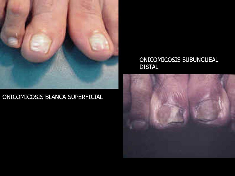 ONICOMICOSIS BLANCA SUPERFICIAL ONICOMICOSIS SUBUNGUEAL DISTAL