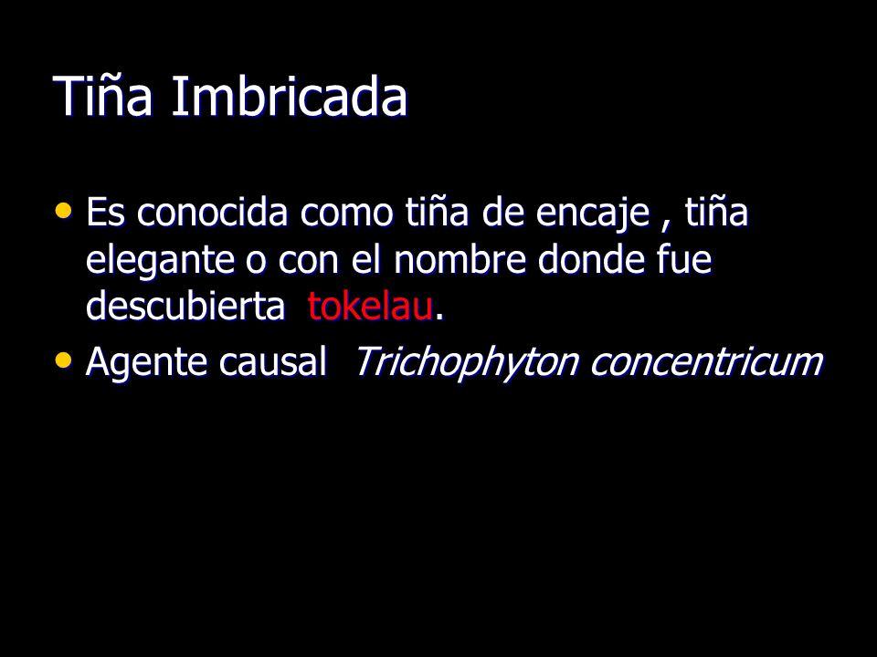 Tiña Imbricada Es conocida como tiña de encaje, tiña elegante o con el nombre donde fue descubierta tokelau.