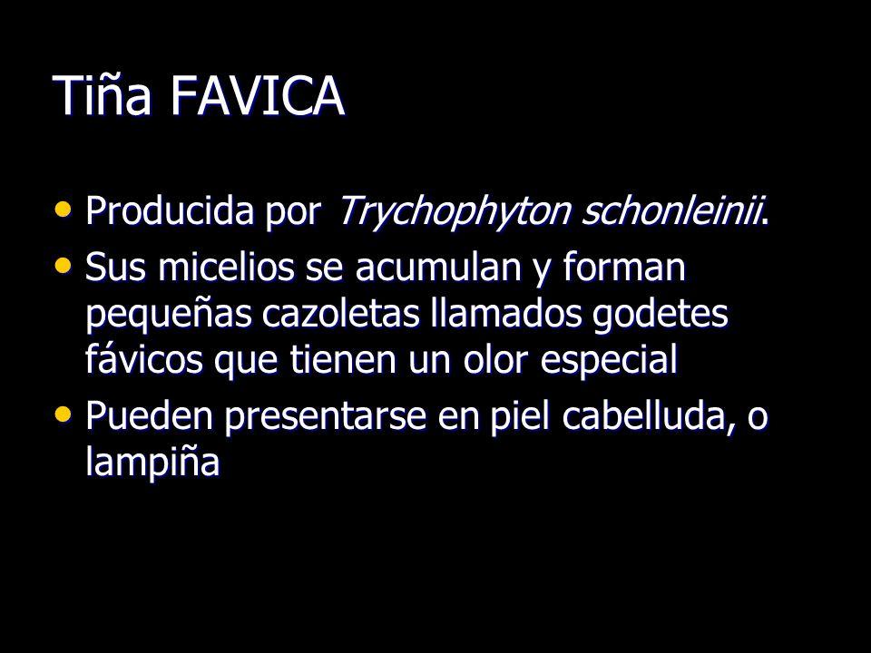 Tiña FAVICA Producida por Trychophyton schonleinii. Producida por Trychophyton schonleinii. Sus micelios se acumulan y forman pequeñas cazoletas llama