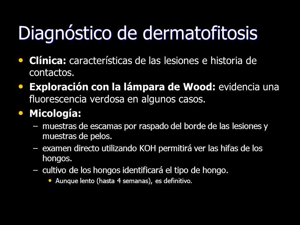 Diagnóstico de dermatofitosis Clínica: características de las lesiones e historia de contactos. Exploración con la lámpara de Wood: evidencia una fluo