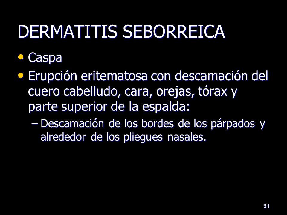DERMATITIS SEBORREICA Caspa Caspa Erupción eritematosa con descamación del cuero cabelludo, cara, orejas, tórax y parte superior de la espalda: Erupción eritematosa con descamación del cuero cabelludo, cara, orejas, tórax y parte superior de la espalda: –Descamación de los bordes de los párpados y alrededor de los pliegues nasales.