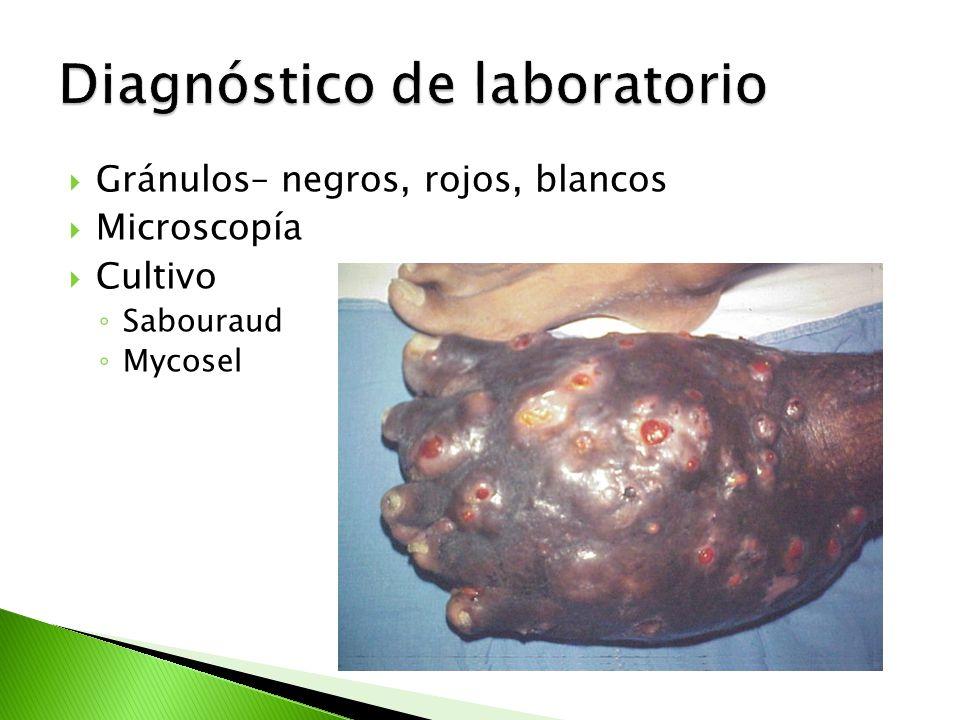 Gránulos– negros, rojos, blancos Microscopía Cultivo Sabouraud Mycosel