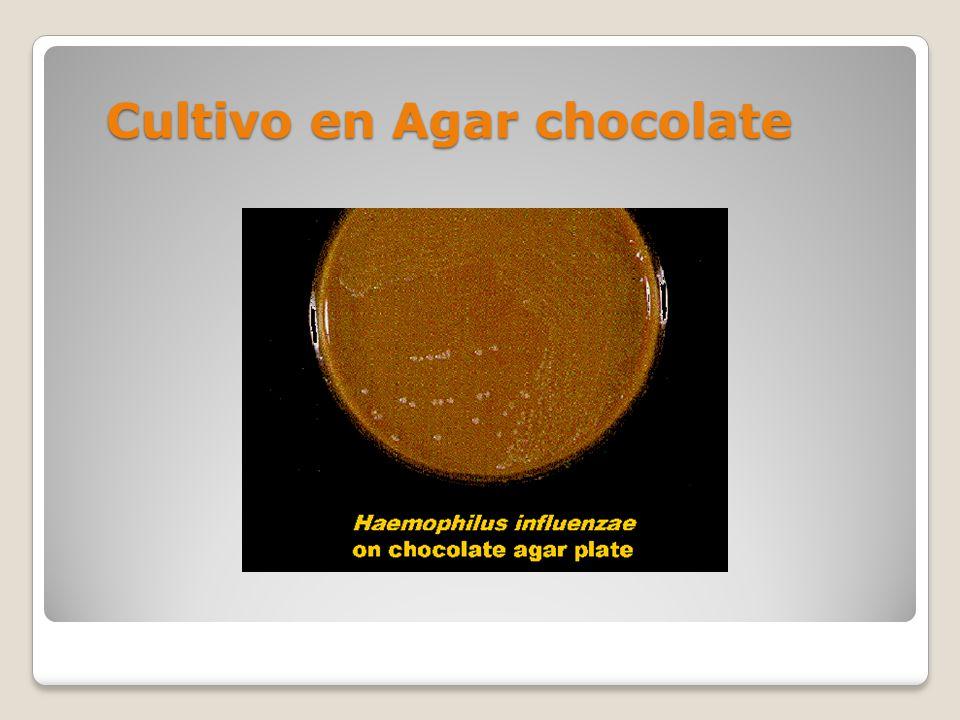 Cultivo en Agar chocolate