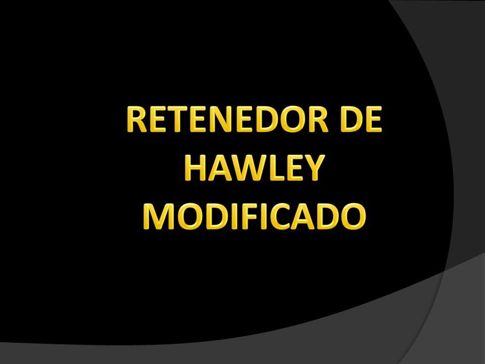 HAWLEY ARCO CONTÍNUO Los incisivos y caninos del maxilar superior, se mantienen estables en su posición mediante el acrílico en sus superficies palatinas y arco labial de 0,8 mm muy bien adaptado.