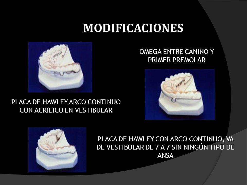 OMEGA ENTRE CANINO Y PRIMER PREMOLAR PLACA DE HAWLEY ARCO CONTINUO CON ACRILICO EN VESTIBULAR PLACA DE HAWLEY CON ARCO CONTINUO, VA DE VESTIBULAR DE 7