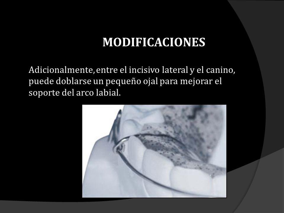 Adicionalmente, entre el incisivo lateral y el canino, puede doblarse un pequeño ojal para mejorar el soporte del arco labial. MODIFICACIONES