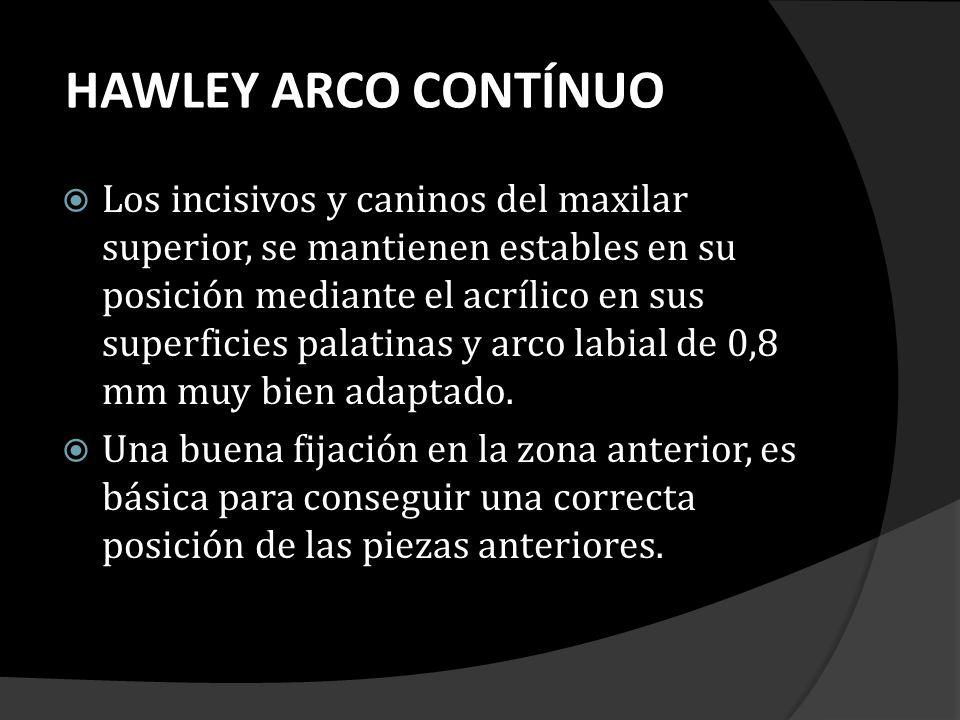 HAWLEY ARCO CONTÍNUO Los incisivos y caninos del maxilar superior, se mantienen estables en su posición mediante el acrílico en sus superficies palati