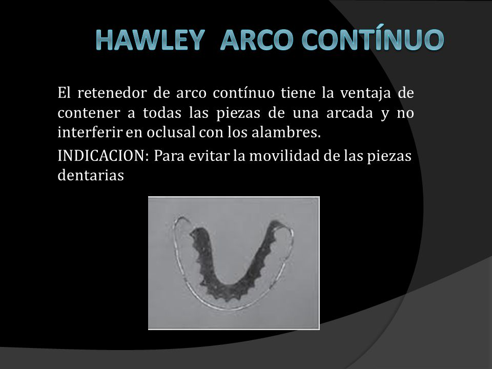 El anclaje se consigue gracias a la perfecta adaptación del Arco Labial en las zonas interproximales de los caninos.