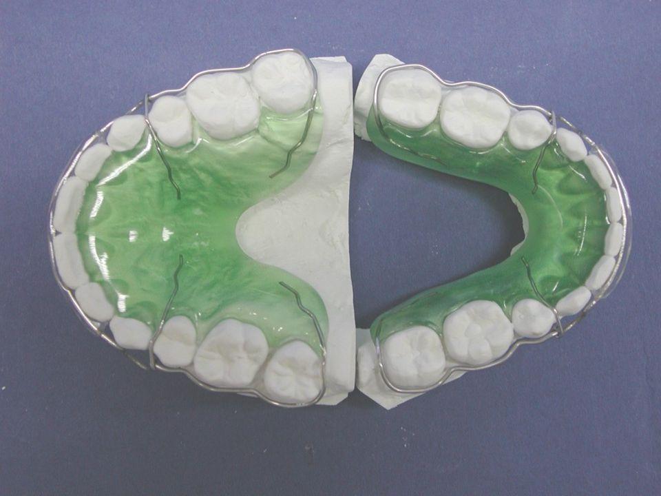 HAWLEY ARCO CONTÍNUO COMPONENTES ARCO LABIAL: Es un arco que va por el tercio medio de todos los dientes tanto anteriores como posteriores hasta distal de los 7, (en algunos casos se elabora hasta distal de los 6).