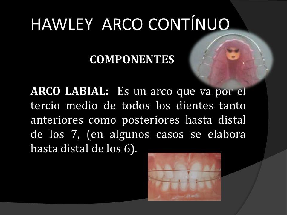 HAWLEY ARCO CONTÍNUO COMPONENTES ARCO LABIAL: Es un arco que va por el tercio medio de todos los dientes tanto anteriores como posteriores hasta dista