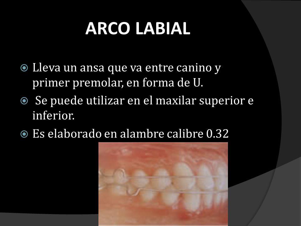 ARCO LABIAL Lleva un ansa que va entre canino y primer premolar, en forma de U. Se puede utilizar en el maxilar superior e inferior. Es elaborado en a