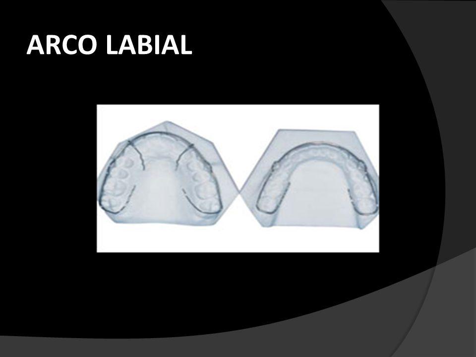 COMPONENTES ACRILICO: En el superior va igual que el de una placa de hawley clásica abarca toda la bóveda sin tocar paladar blando y por tercio medio de todos los dientes.