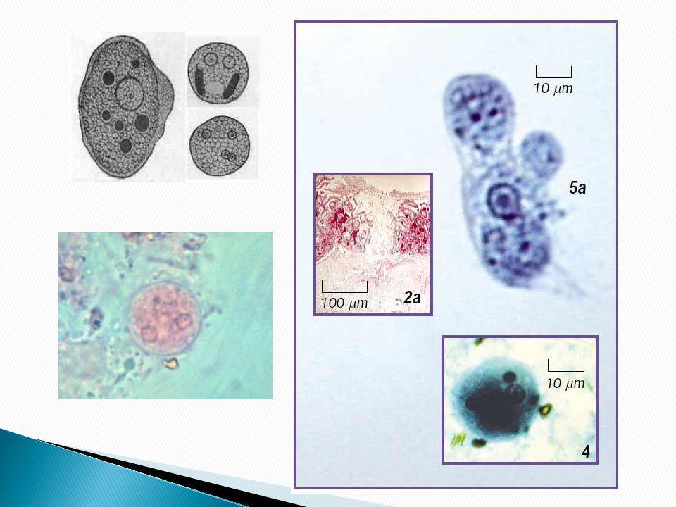 Trofozoíto fagocitando eritrocitos