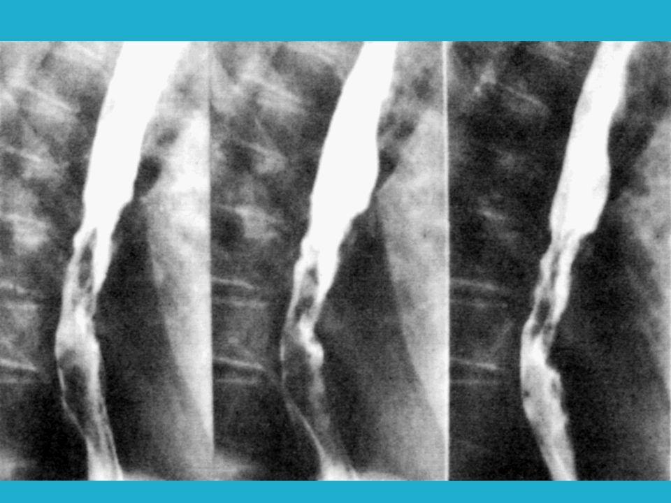 ENDOSCOPIA ESOFAGOSCOPIA Relación de la neoplasia con el cricofaríngeo.