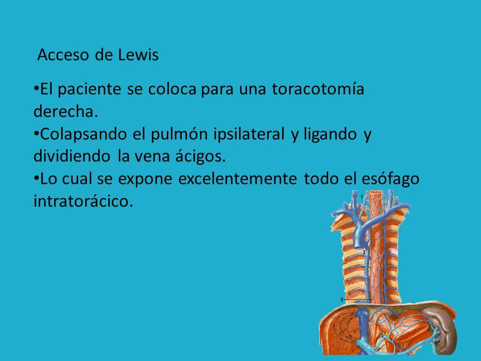 Es la excelente exposición, que facilita la obtención de un margen amplio, así como la anastomosis.