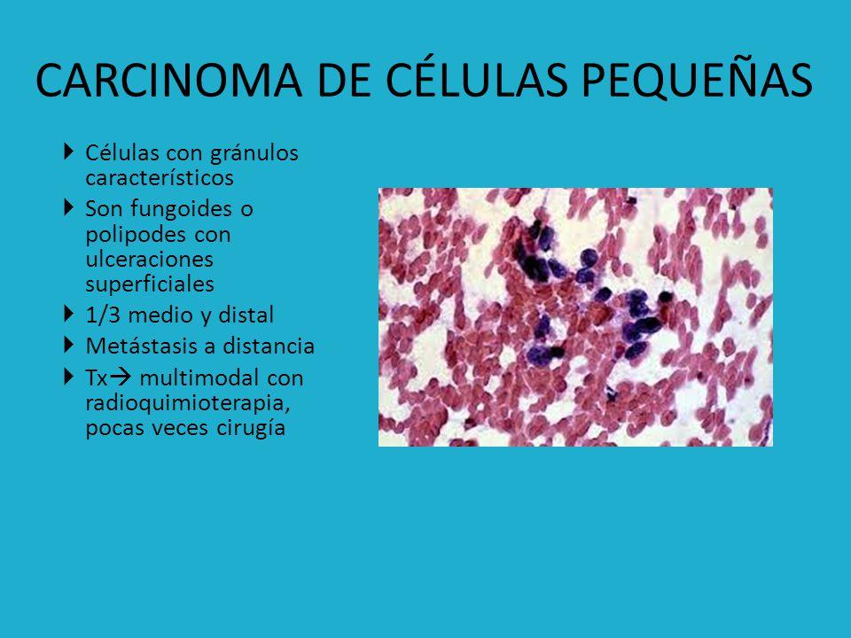 Presencia de melanoblastos en la mucosa del esófago Edad promedio 60 años Hombres Típicamente polipoides, pueden alcanzar gran tamaño Negra.