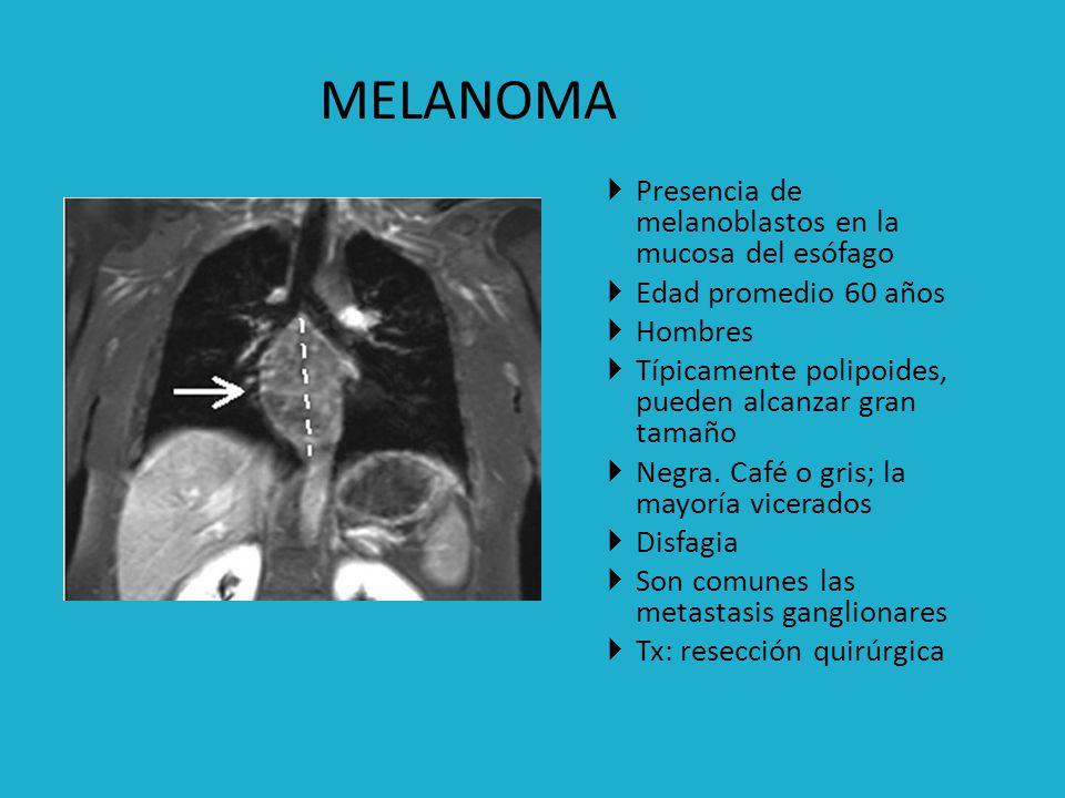 Tumor sarcomatoso más frecuente del esófagoo Predomina en varones 1/3 medio e inferior Característicamente pedunculado en rx Suele alcanzar un gran tamaño Invade estructuras mediastinales Tx: resección quirúrgica LEIOMIOSARCOMA