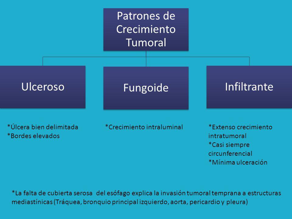 Metástasis Metástasis ganglionares son comunes y se correlacionan con el grado de penetración del tumor en la pared del esófago.