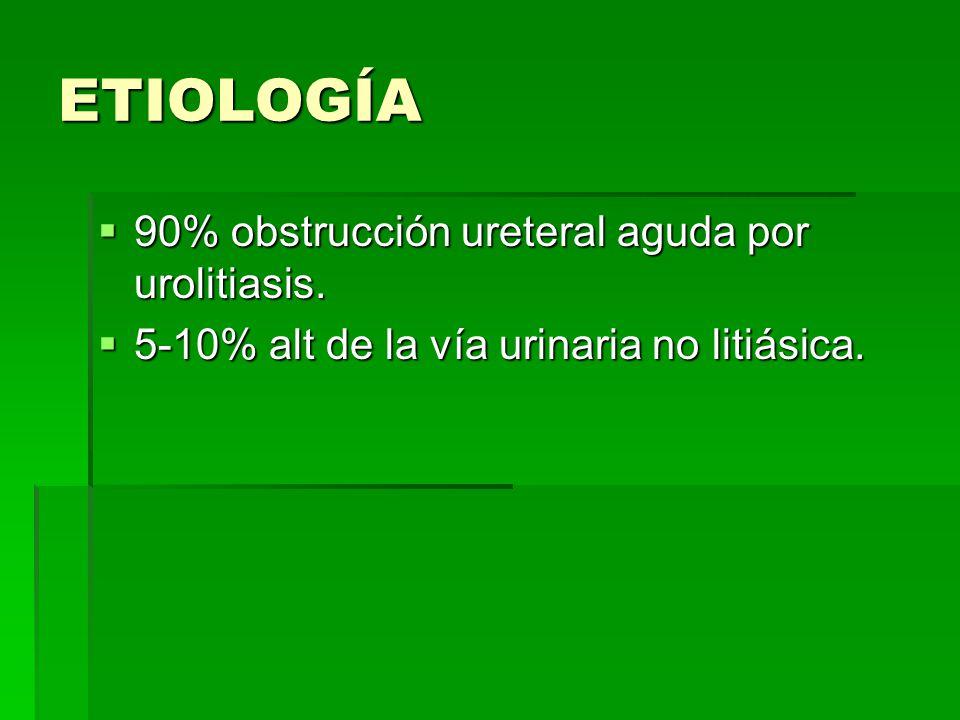 ETIOLOGÍA 90% obstrucción ureteral aguda por urolitiasis.