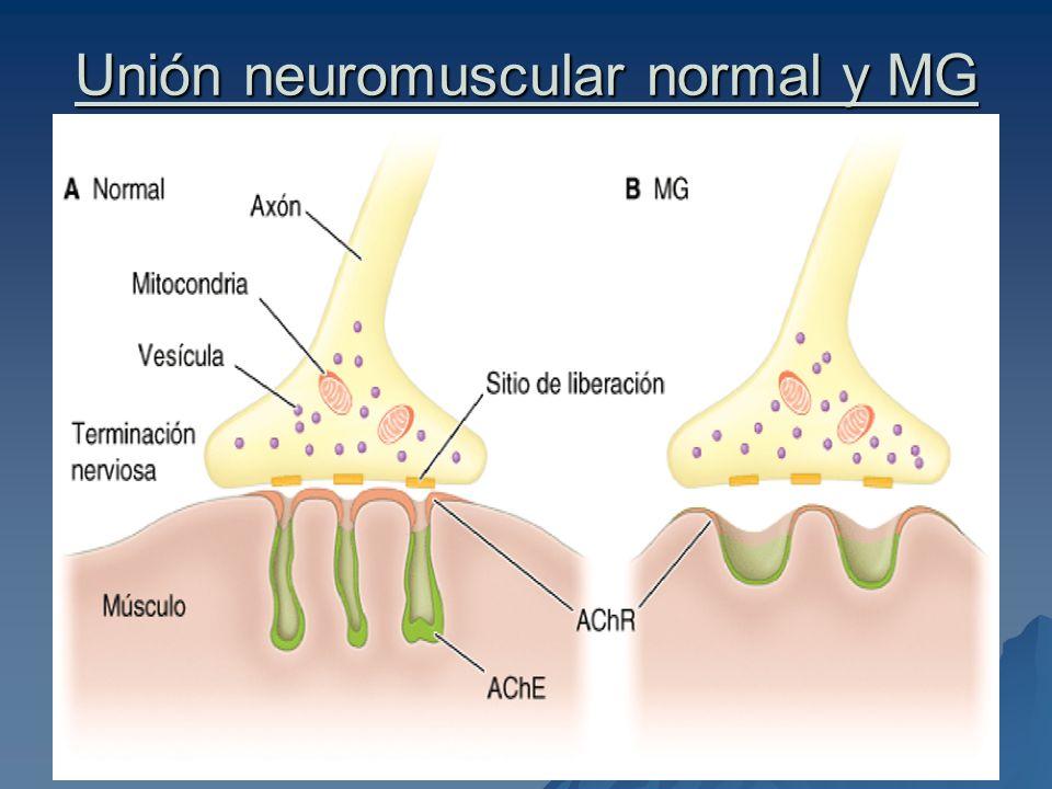 Unión neuromuscular normal y MG