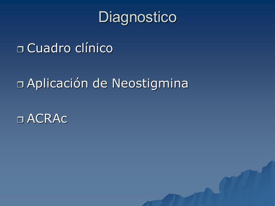 Diagnostico Cuadro clínico Cuadro clínico Aplicación de Neostigmina Aplicación de Neostigmina ACRAc ACRAc